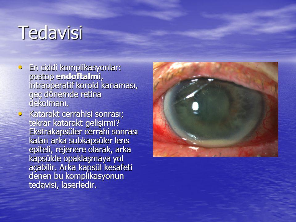 Tedavisi En ciddi komplikasyonlar: postop endoftalmi, intraoperatif koroid kanaması, geç dönemde retina dekolmanı. En ciddi komplikasyonlar: postop en