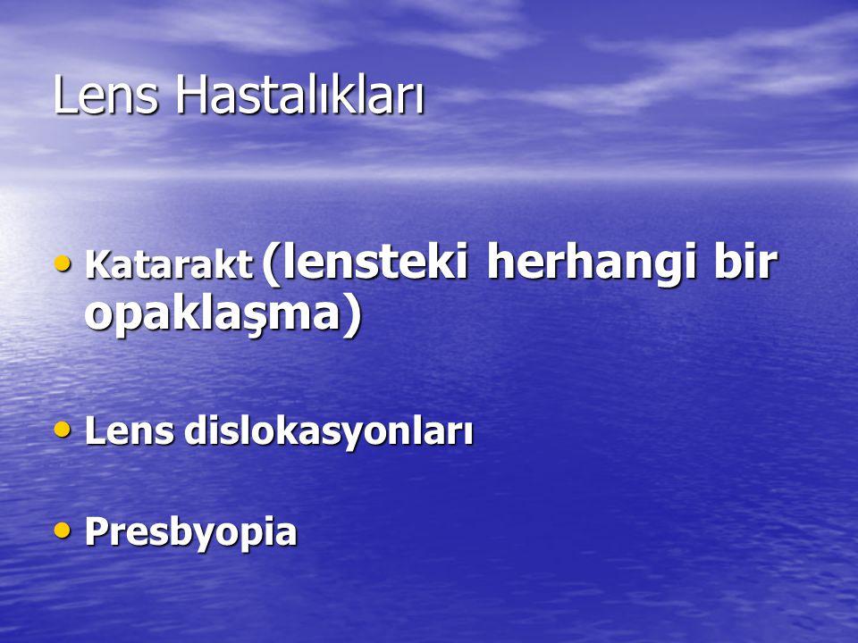 Lens Hastalıkları Katarakt (lensteki herhangi bir opaklaşma) Katarakt (lensteki herhangi bir opaklaşma) Lens dislokasyonları Lens dislokasyonları Pres