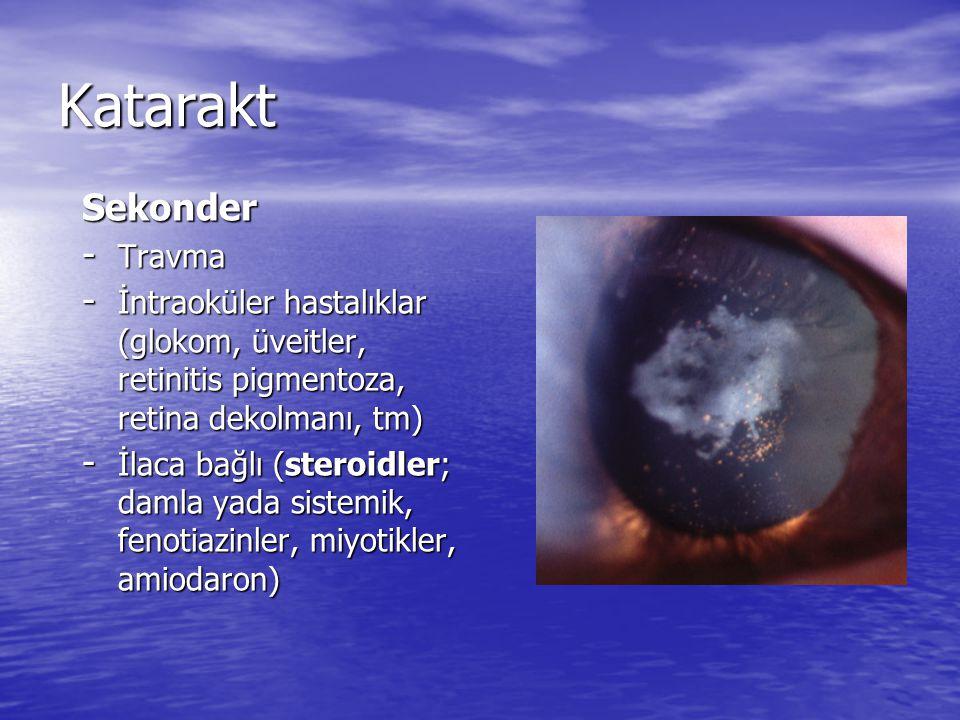 Katarakt Sekonder - Travma - İntraoküler hastalıklar (glokom, üveitler, retinitis pigmentoza, retina dekolmanı, tm) - İlaca bağlı (steroidler; damla y