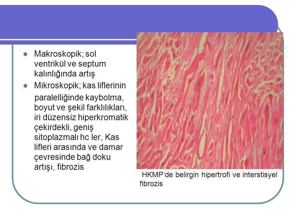 Makroskopik; sol ventrikül ve septum kalınlığında artış Mikroskopik; kas liflerinin paralelliğinde kaybolma, boyut ve şekil farklılıkları, iri düzensiz hiperkromatik çekirdekli, geniş sitoplazmalı hc ler, Kas lifleri arasında ve damar çevresinde bağ doku artışı, fibrozis HKMP'de belirgin hipertrofi ve interstisyel fibrozis