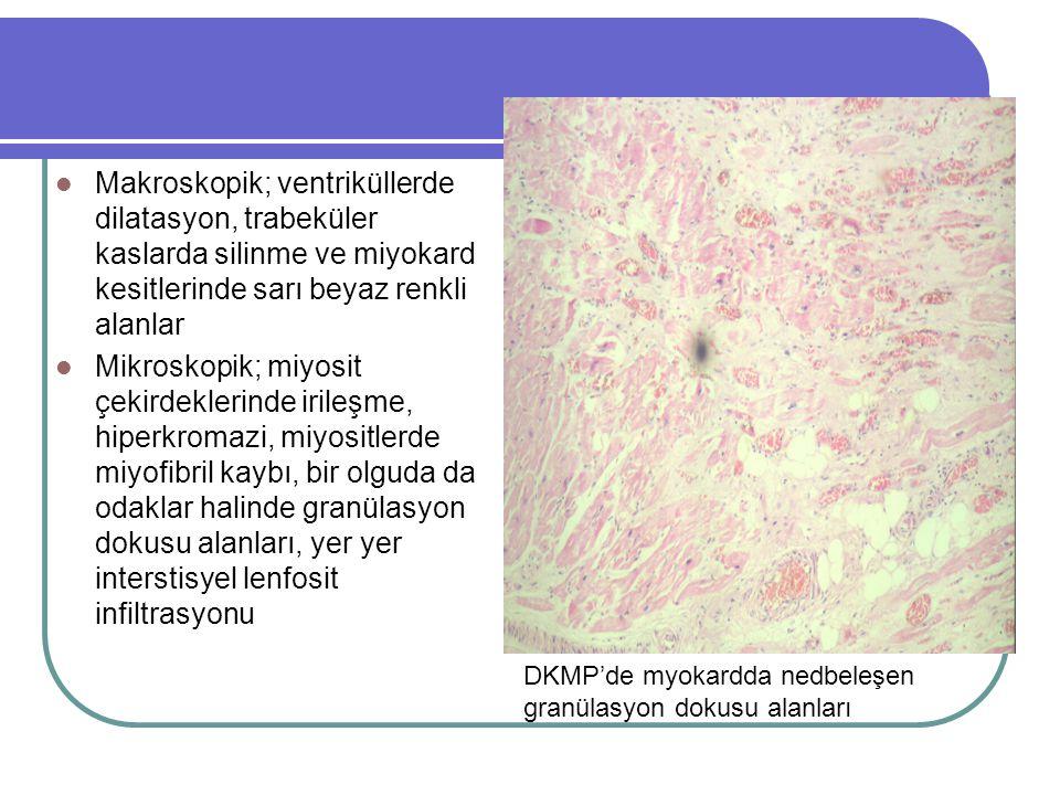 Myokardda amiloid birikimi Restriktif KMP olarak değerlendirilen bir olguda, miyokardda interstisyel alanda miyositleri tek tek saran yoğun amiloid birikimi