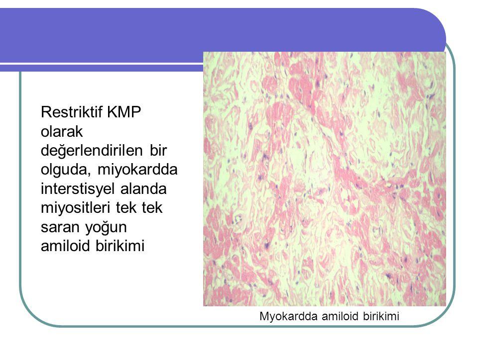 1.ATİK' de değerlendirilmesi İnterstisyumda ve damar duvarılarında yaygın amiloid birikimi Hipertrofi, Sağ ventriküler dilatasyon, Myokard kesitleri soluk 760Kadın37 İdiopatik Dilate Kardiyomyopati Hipertrofi, İnterstisyel fibrozis, Myofibril kaybı Endokardial kalınlaşma, Her iki atrium-ventriküller dilate, Trabeküller düzleşmiş 500Erkek22 Peripartum Kardiyomyopati Hipertrofi, İnterstisyel fibrozis, Myodisarray Her iki atrium-ventriküller dilate, Trabeküller düzleşmiş 330Kadın25 Hipertrofik Kardiyomyopati Hipertrofi, Nedbeler İnterstisyel fibrozis, Myodisarray Hipertrofi, Aort girişinde darlık, Fibrotik alanlar 650Erkek35 Dilate Kardiyomyopati Multifokal nedbelerFibrotik alanlar, Myokardda alacalı görünüm Sol ventrikül dilate, Trabeküller düzleşmiş 350Erkek20 Hipertrofik Kardiyomyopati Hipertrofi, İnterstisyel fibrozis, Myodisarray Hipertrofi, Fibrotik çizgilenmeler 450Kadın25 Hipertrofik Kardiyomyopati Hipertrofi, Nedbeler İnterstisyel fibrozis, Myodisarray Hipertrofi, Nedbe alanları 470Kadın35 Hipertrofik Kardiyomyopati Hipertrofi, Nedbeler İnterstisyel fibrozis, Myodisarray Hipertrofi, Sol ventrikül anevrizması 530Erkek25 ASD ve Hipertrofik Kardiyomyopati Hipertrofi, Nedbeler İnterstisyel fibrozis, Myodisarray Hipertrofi,ASD, Kapanmış VSD 380Erkek15 Hipertrofik Kardiyomyopati Hipertrofi, İnterstisyel fibrozis, Myodisarray Hipertrofi, Fibrotik mitral kapak 330Kadın15 Hipertrofik Kardiyomyopati Hipertrofi, İnterstisyel fibrozis, Myodisarray Hipertrofi 465 Kadın20 DOSYADA VERİLEN ÖLÜM NEDENİ MİKROSKOPİK BULGULAR MAKROSKOPİK BULGULAR CİNS YAŞ