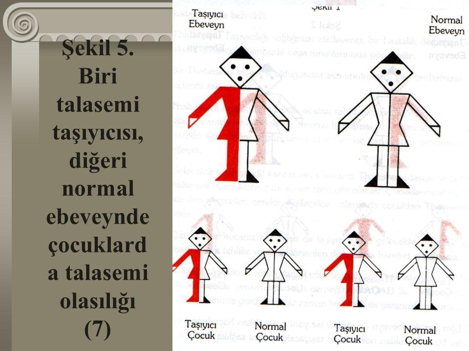 Şekil 5. Biri talasemi taşıyıcısı, diğeri normal ebeveynde çocuklard a talasemi olasılığı (7)