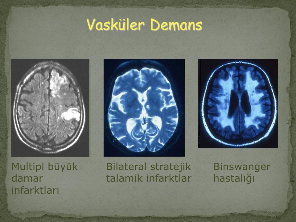 Vasküler Demans Multipl büyük damar infarktları Bilateral stratejik talamik infarktlar Binswanger hastalığı