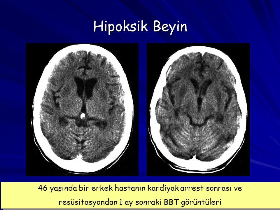 13 Hipoksik Beyin 46 yaşında bir erkek hastanın kardiyak arrest sonrası ve resüsitasyondan 1 ay sonraki BBT görüntüleri 46 yaşında bir erkek hastanın