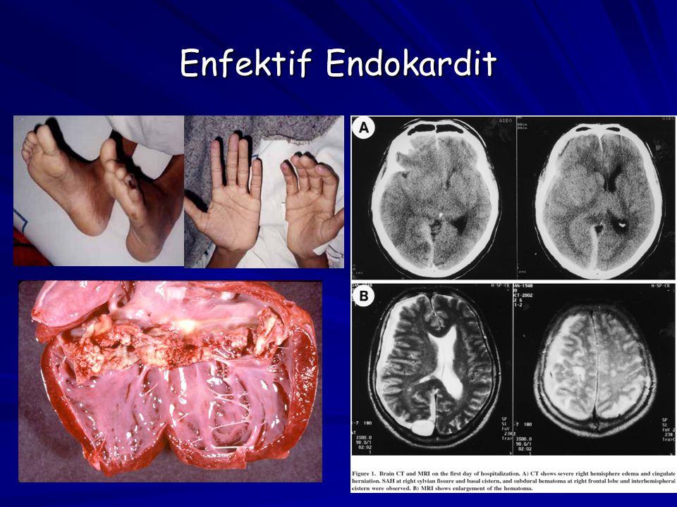 18 Enfektif Endokardit