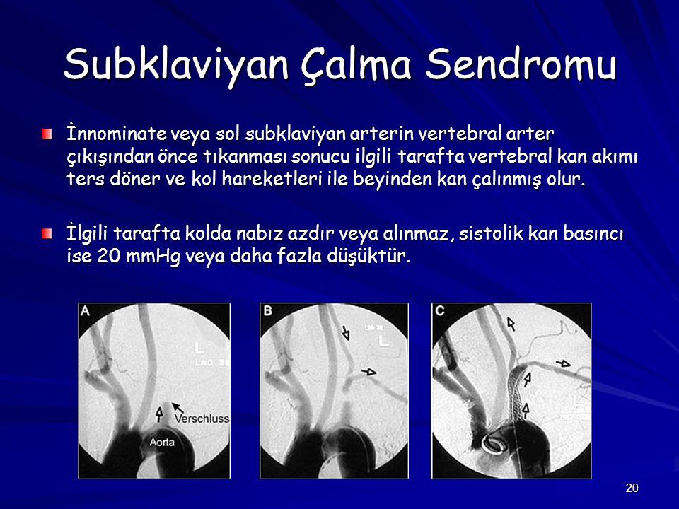 20 Subklaviyan Çalma Sendromu İnnominate veya sol subklaviyan arterin vertebral arter çıkışından önce tıkanması sonucu ilgili tarafta vertebral kan ak