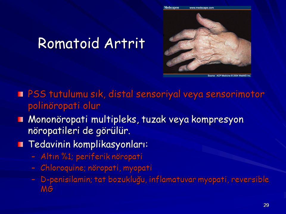 29 Romatoid Artrit PSS tutulumu sık, distal sensoriyal veya sensorimotor polinöropati olur Mononöropati multipleks, tuzak veya kompresyon nöropatileri