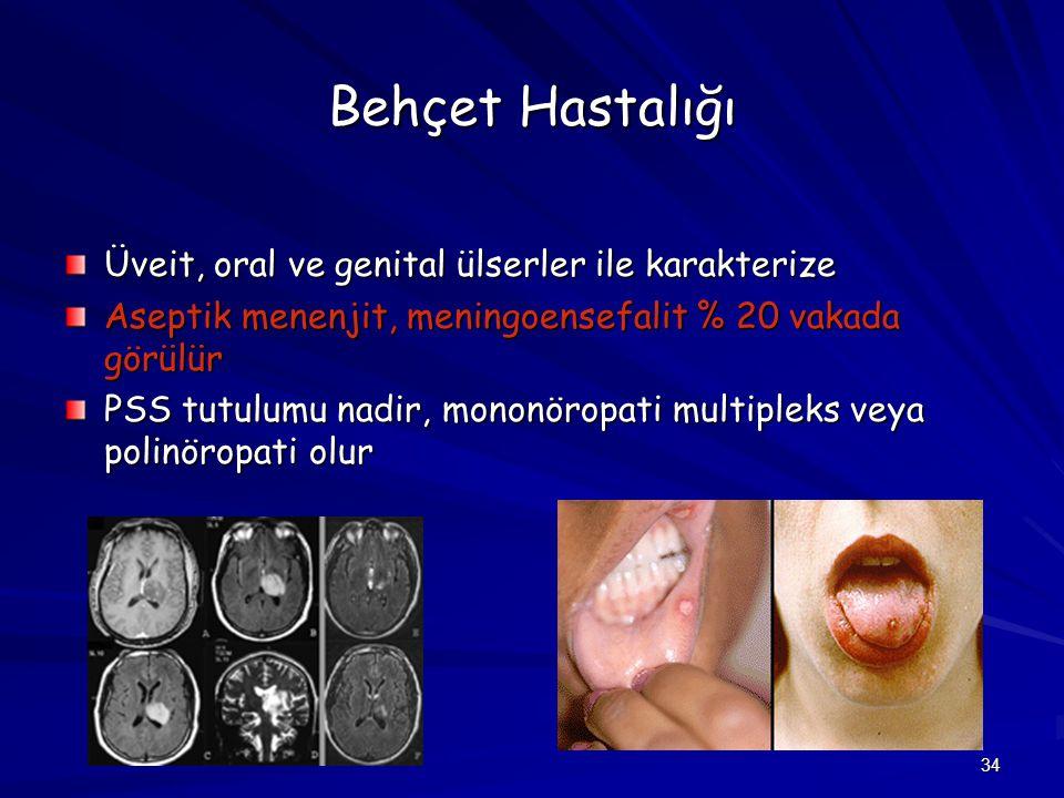 34 Behçet Hastalığı Üveit, oral ve genital ülserler ile karakterize Aseptik menenjit, meningoensefalit % 20 vakada görülür PSS tutulumu nadir, mononör