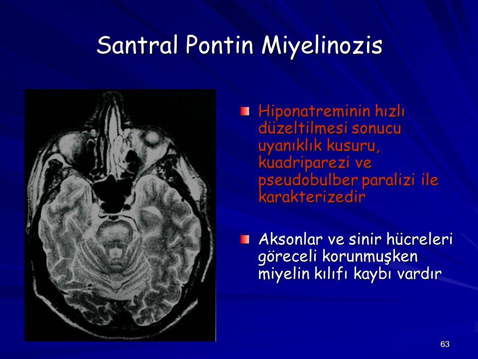 63 Santral Pontin Miyelinozis Hiponatreminin hızlı düzeltilmesi sonucu uyanıklık kusuru, kuadriparezi ve pseudobulber paralizi ile karakterizedir Akso