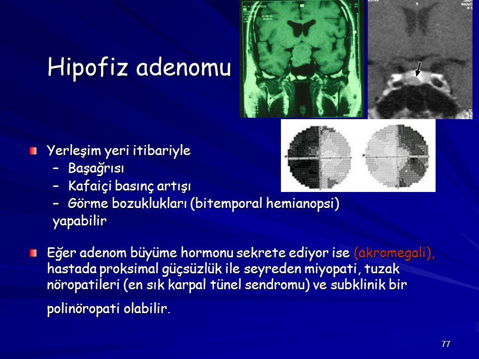 77 Hipofiz adenomu Yerleşim yeri itibariyle –Başağrısı –Kafaiçi basınç artışı –Görme bozuklukları (bitemporal hemianopsi) yapabilir Eğer adenom büyüme