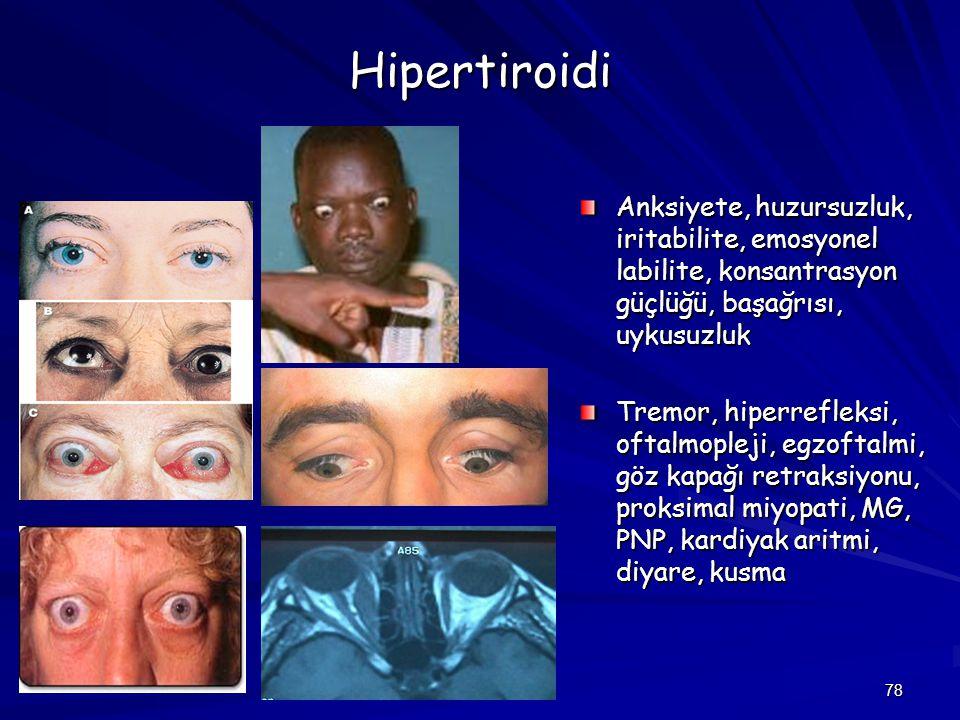 78 Hipertiroidi Anksiyete, huzursuzluk, iritabilite, emosyonel labilite, konsantrasyon güçlüğü, başağrısı, uykusuzluk Tremor, hiperrefleksi, oftalmopl