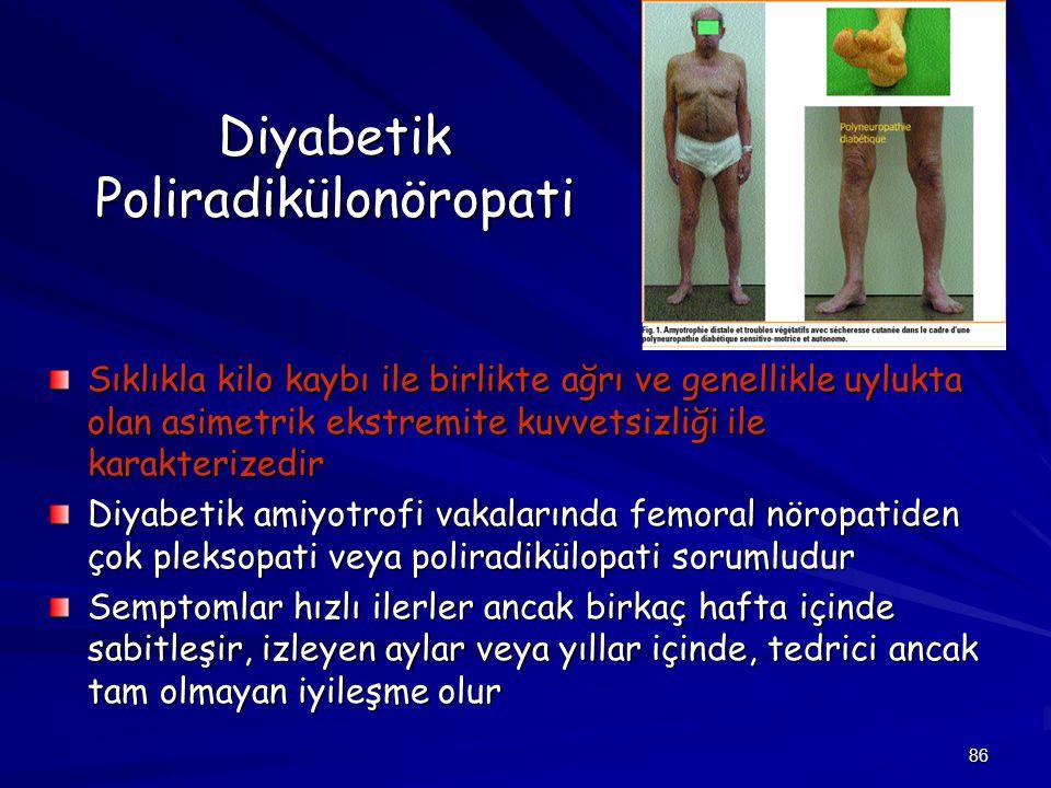 86 Diyabetik Poliradikülonöropati Sıklıkla kilo kaybı ile birlikte ağrı ve genellikle uylukta olan asimetrik ekstremite kuvvetsizliği ile karakterized