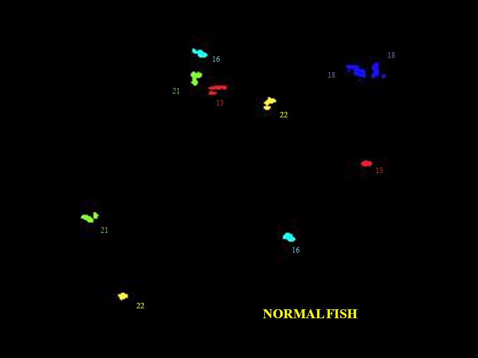 21 13 16 18 22 NORMAL FISH