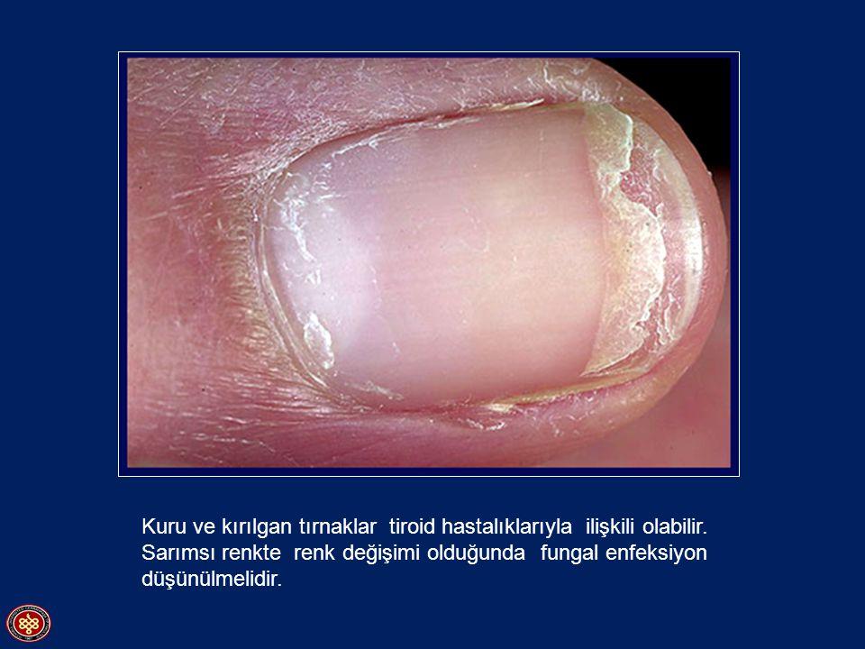Kuru ve kırılgan tırnaklar tiroid hastalıklarıyla ilişkili olabilir. Sarımsı renkte renk değişimi olduğunda fungal enfeksiyon düşünülmelidir.