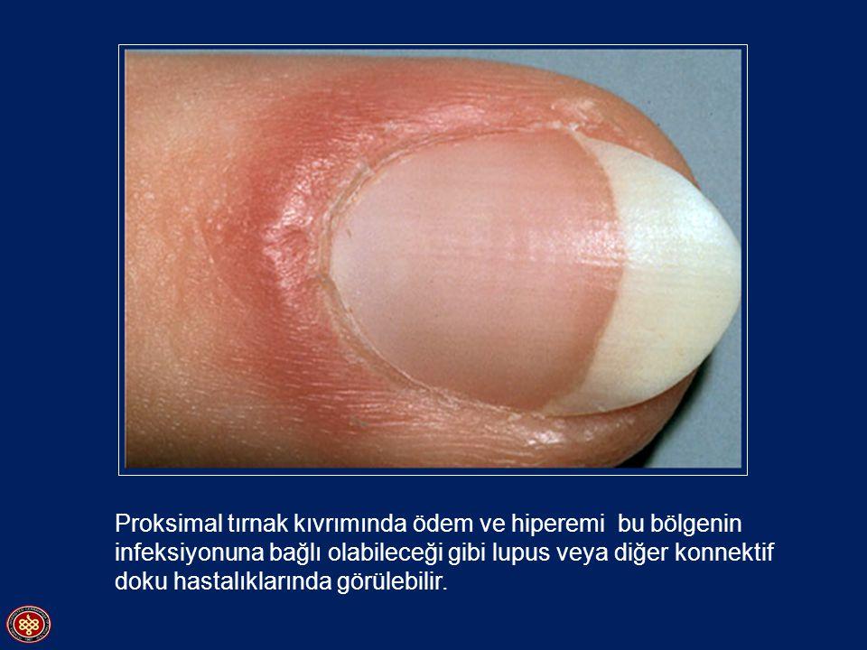 Proksimal tırnak kıvrımında ödem ve hiperemi bu bölgenin infeksiyonuna bağlı olabileceği gibi lupus veya diğer konnektif doku hastalıklarında görülebi
