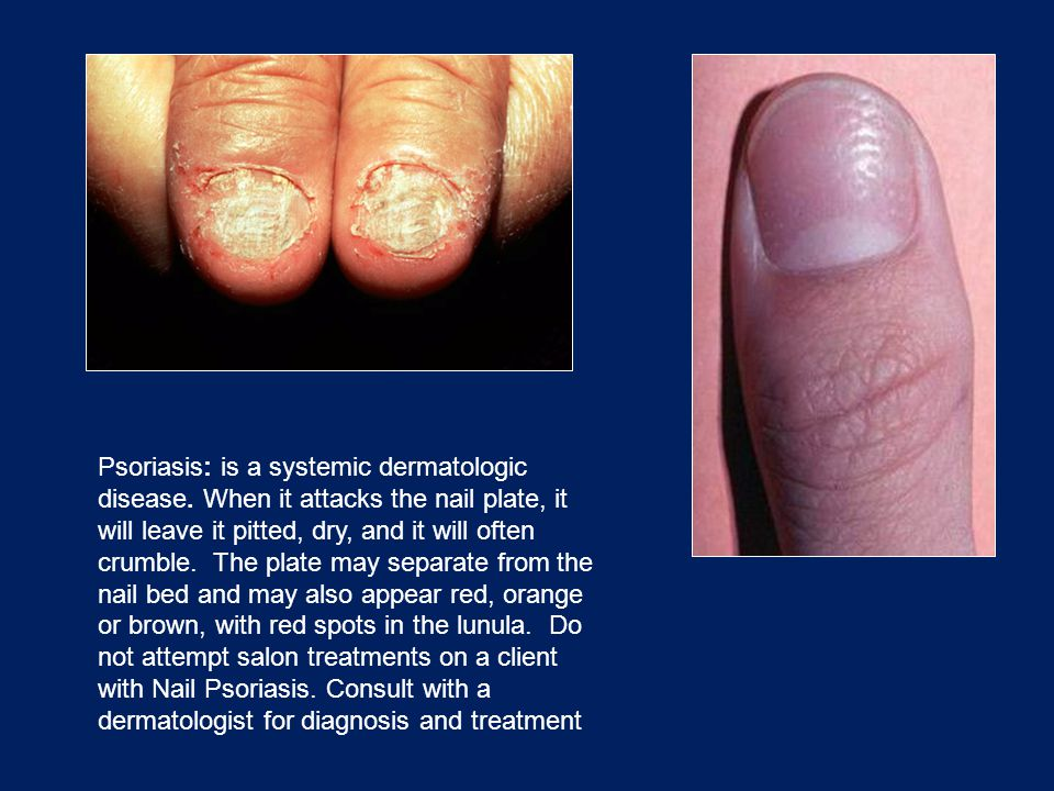 Psoriasis: is a systemic dermatologic disease. When it attacks the nail plate, it will leave it pitted, dry, and it will often crumble. The plate may