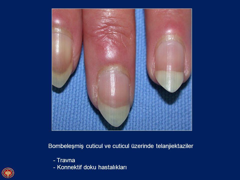 Bombeleşmiş cuticul ve cuticul üzerinde telanjiektaziler - Travna - Konnektif doku hastalıkları