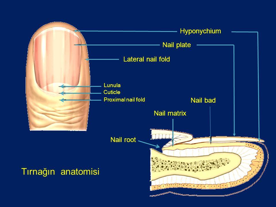 Dalgalı, pürüzlü ve yüksük yüzeyi gibi noklalanmalar gösteren psöriasis veya inflamatuar artritin erken bulgusu olabilir.