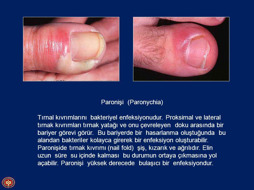 Paronişi (Paronychia) Tırnal kıvrımlarını bakteriyel enfeksiyonudur. Proksimal ve lateral tırnak kıvrımları tırnak yatağı ve onu çevreleyen doku arası