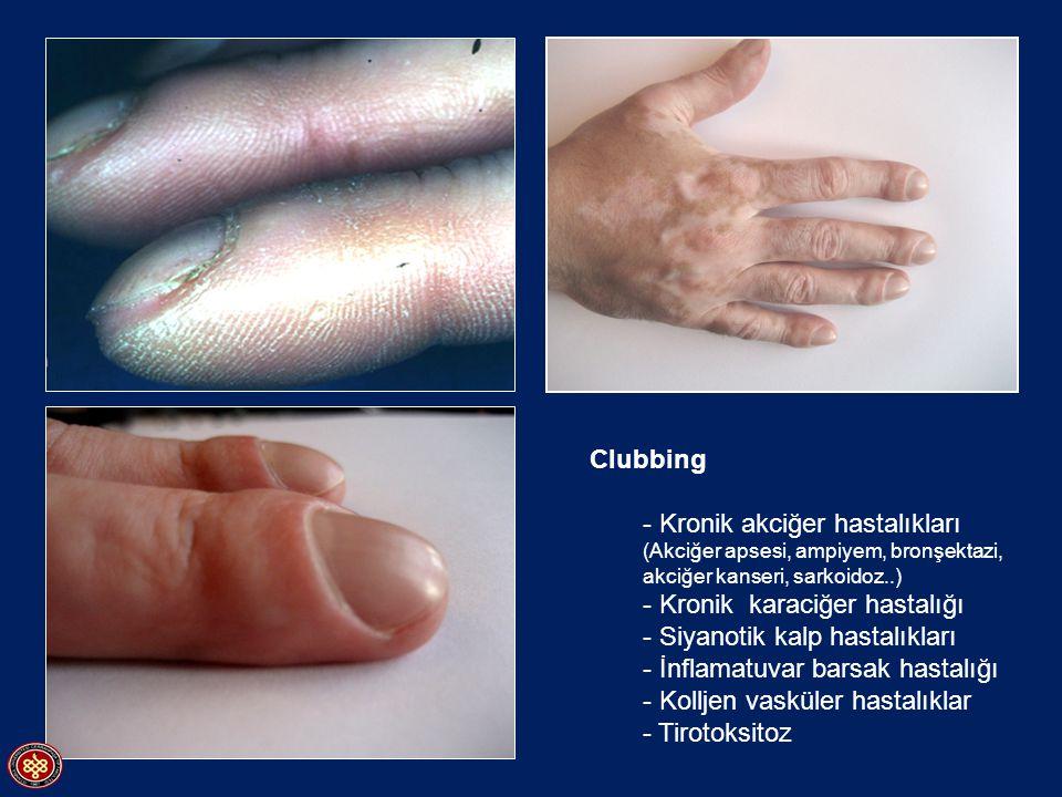 Clubbing - Kronik akciğer hastalıkları (Akciğer apsesi, ampiyem, bronşektazi, akciğer kanseri, sarkoidoz..) - Kronik karaciğer hastalığı - Siyanotik k