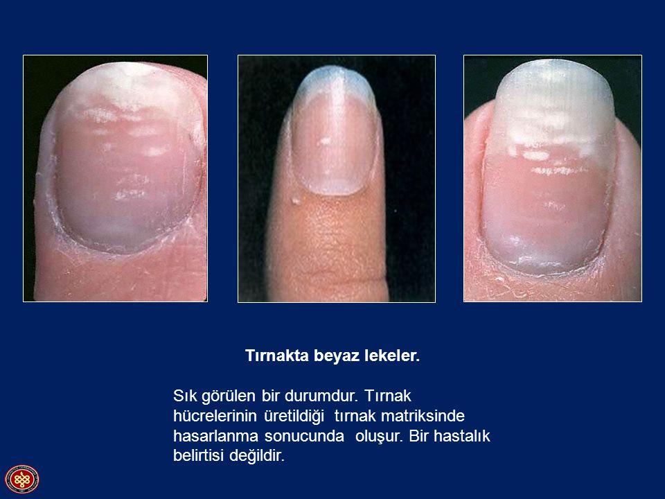 Tırnakta beyaz lekeler. Sık görülen bir durumdur. Tırnak hücrelerinin üretildiği tırnak matriksinde hasarlanma sonucunda oluşur. Bir hastalık belirtis
