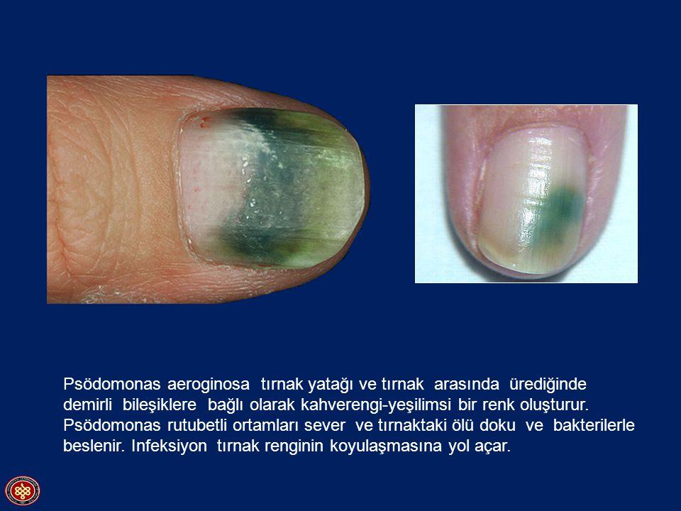 Psödomonas aeroginosa tırnak yatağı ve tırnak arasında ürediğinde demirli bileşiklere bağlı olarak kahverengi-yeşilimsi bir renk oluşturur. Psödomonas