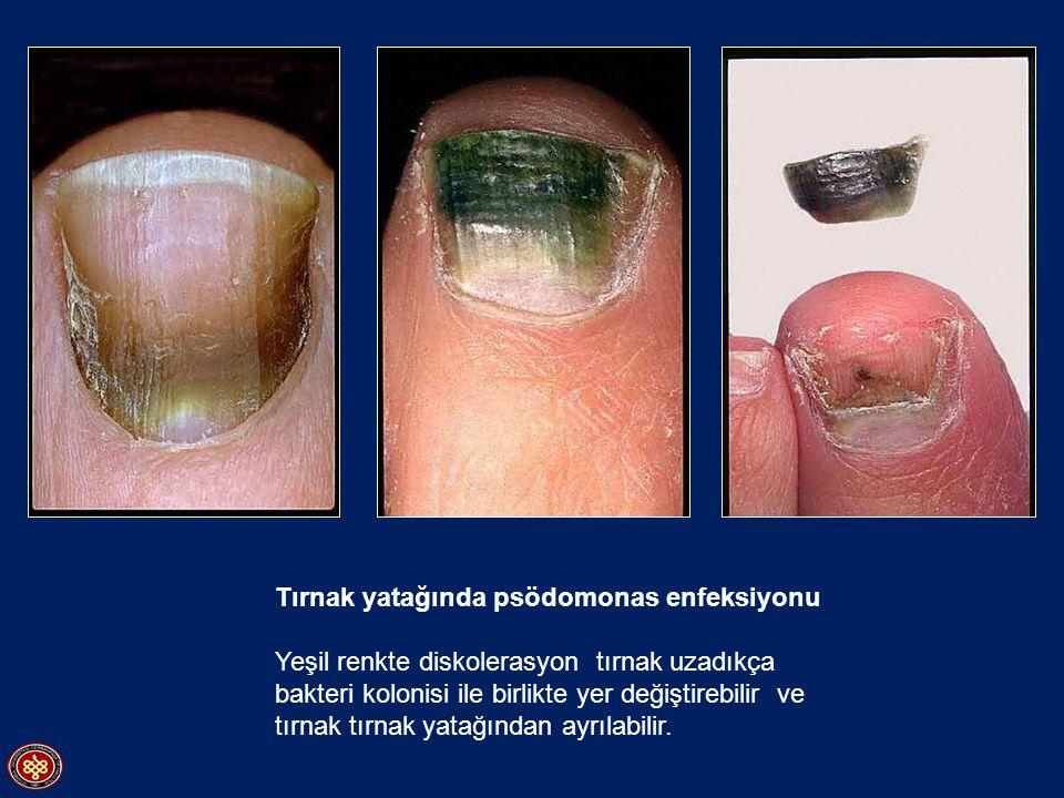 Tırnak yatağında psödomonas enfeksiyonu Yeşil renkte diskolerasyon tırnak uzadıkça bakteri kolonisi ile birlikte yer değiştirebilir ve tırnak tırnak y