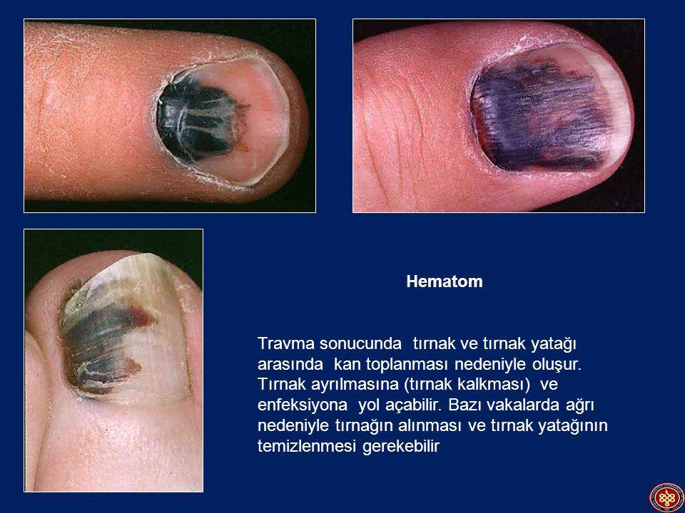Hematom Travma sonucunda tırnak ve tırnak yatağı arasında kan toplanması nedeniyle oluşur. Tırnak ayrılmasına (tırnak kalkması) ve enfeksiyona yol aça