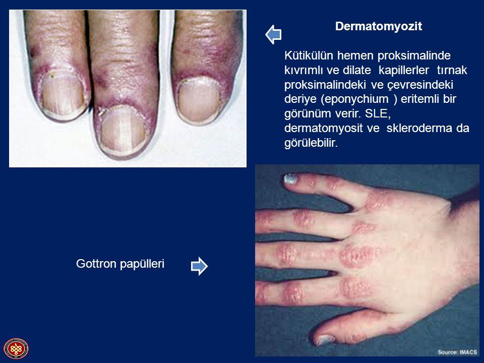 Dermatomyozit Kütikülün hemen proksimalinde kıvrımlı ve dilate kapillerler tırnak proksimalindeki ve çevresindeki deriye (eponychium ) eritemli bir gö