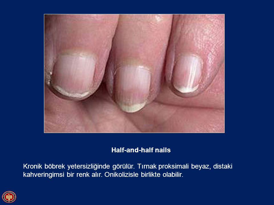 Half-and-half nails Kronik böbrek yetersizliğinde görülür. Tırnak proksimali beyaz, distaki kahveringimsi bir renk alır. Onikolizisle birlikte olabili