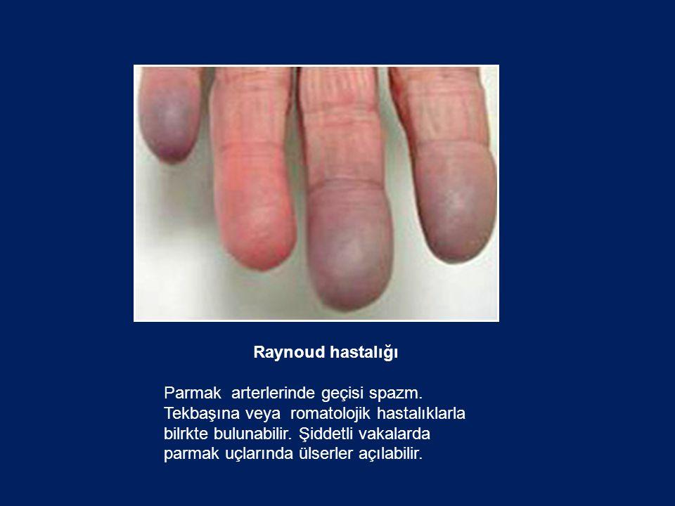 Raynoud hastalığı Parmak arterlerinde geçisi spazm. Tekbaşına veya romatolojik hastalıklarla bilrkte bulunabilir. Şiddetli vakalarda parmak uçlarında