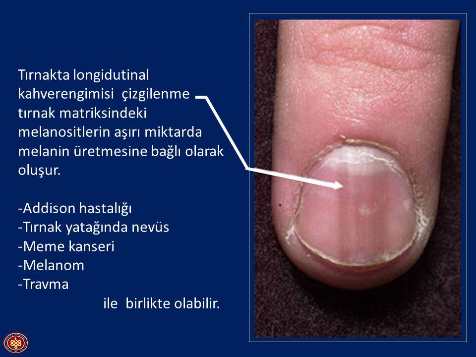 Half-and-half nails Kronik böbrek yetersizliğinde görülür.