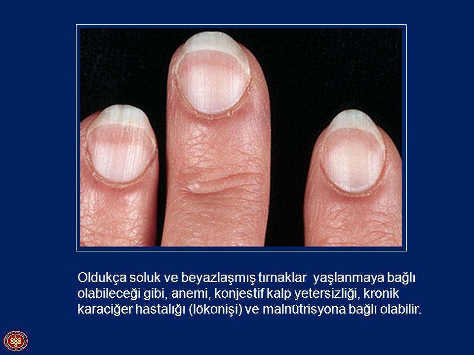 Beyaz ve soluk tırnakta soluk ve beyaz alan koyu renkli bir sınırla çevrelendiğinde kronik karaciğer hastalığı düşünülmelidir (Lökonişi)