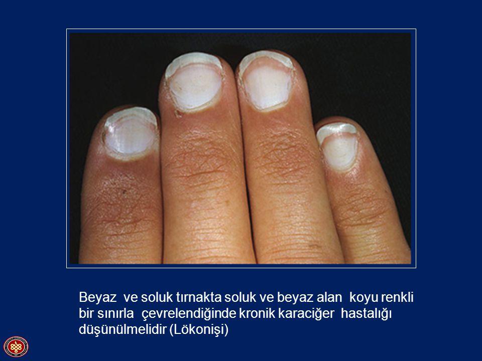 Tırnakta longidutinal çizgilenme ve bombeleşme - Yaşlanma - Travma - Lichen planus - Darier s disease - Onikomikoz (Onychomycosis) - Psöriasis