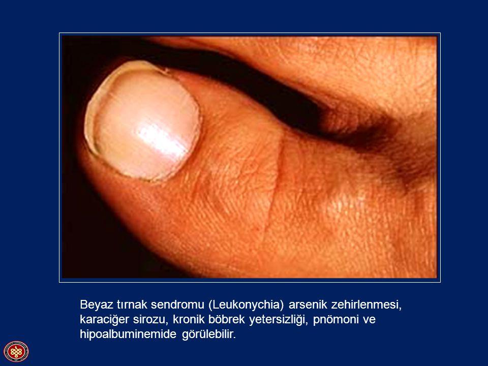Buerger hastalığında gangrenli parmak uçları
