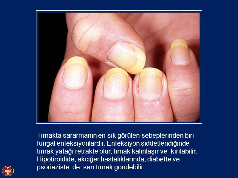 Raynoud hastalığı Parmak arterlerinde geçisi spazm.
