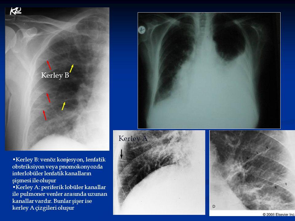 Kerley B Kerley B: venöz konjesyon, lenfatik obstriksiyon veya pnomokonyozda interlobüler lenfatik kanalların şişmesi ile oluşur Kerley A: periferik l