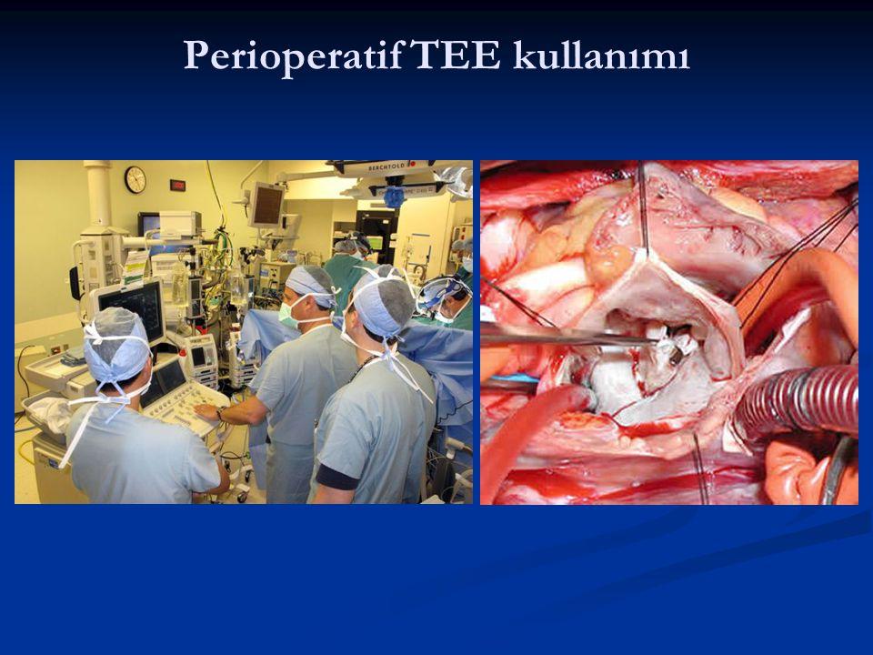 Perioperatif TEE kullanımı