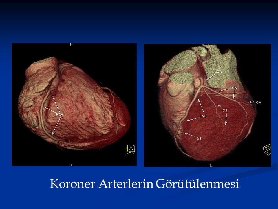 Koroner Arterlerin Görütülenmesi