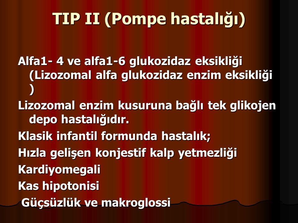 TIP II (Pompe hastalığı) Alfa1- 4 ve alfa1-6 glukozidaz eksikliği (Lizozomal alfa glukozidaz enzim eksikliği ) Lizozomal enzim kusuruna bağlı tek glikojen depo hastalığıdır.