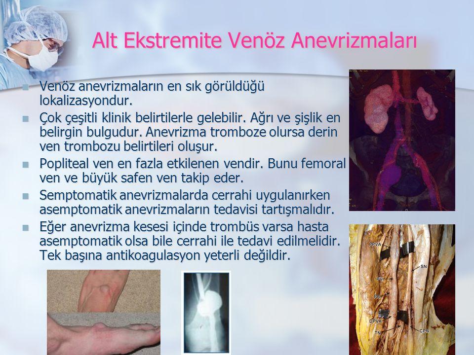 Alt Ekstremite Venöz Anevrizmaları Venöz anevrizmaların en sık görüldüğü lokalizasyondur.