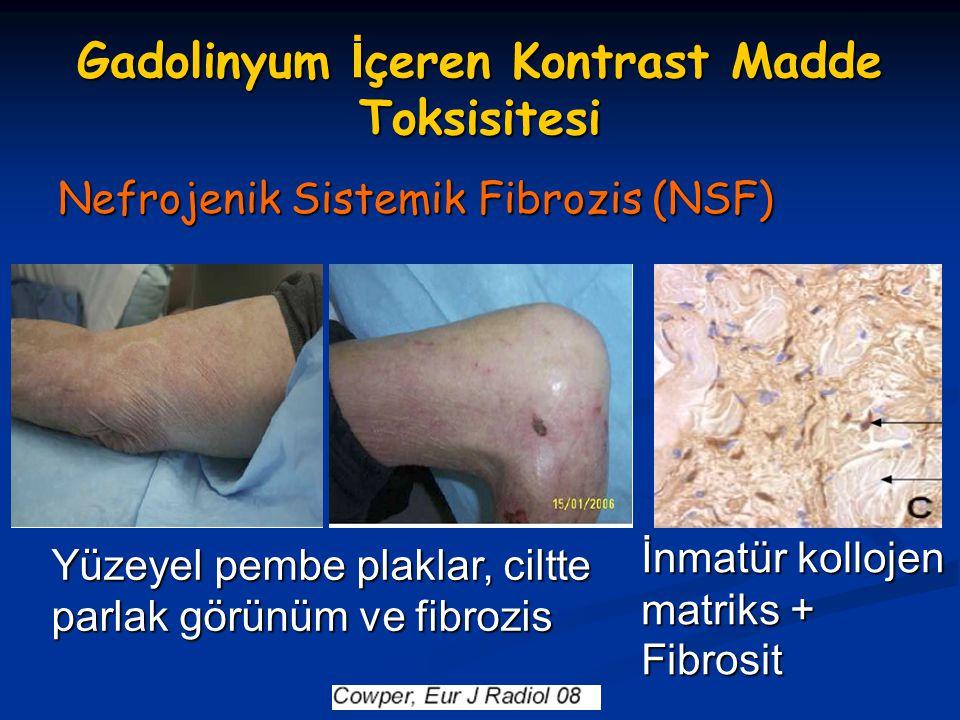 Gadolinyum İ çeren Kontrast Madde Toksisitesi Nefrojenik Sistemik Fibrozis (NSF) İnmatür kollojen matriks + Fibrosit Yüzeyel pembe plaklar, ciltte par