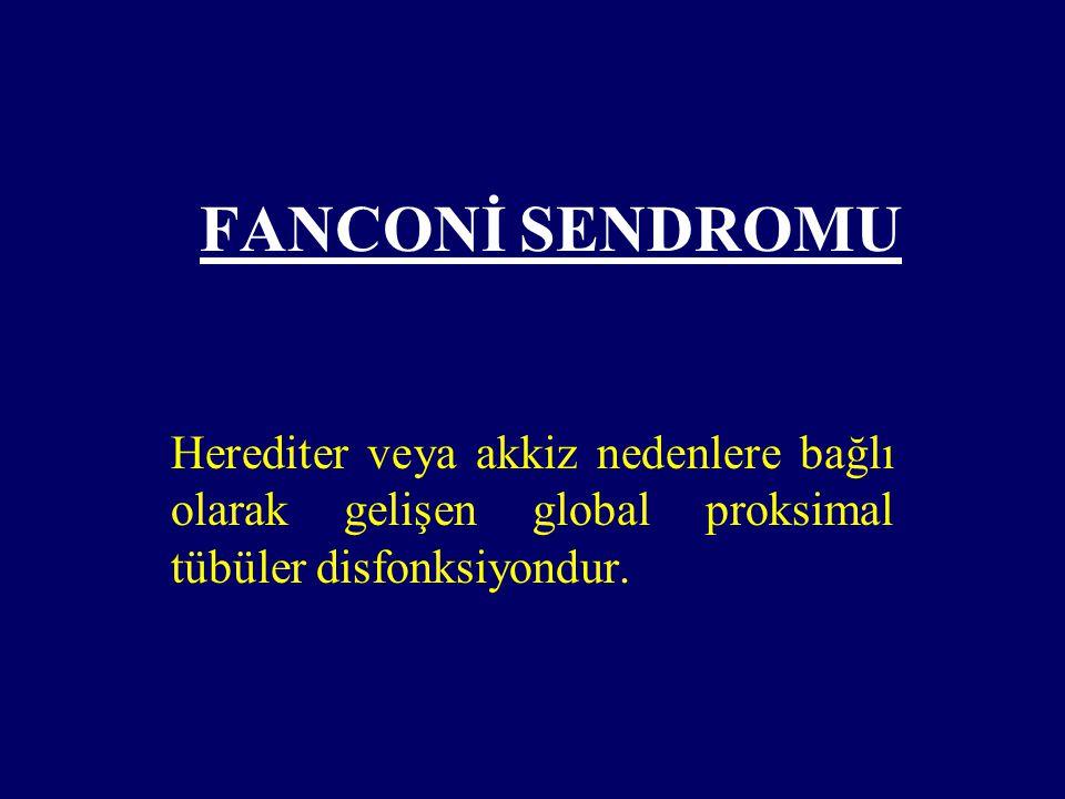 Fanconi Sendromu Nedenleri