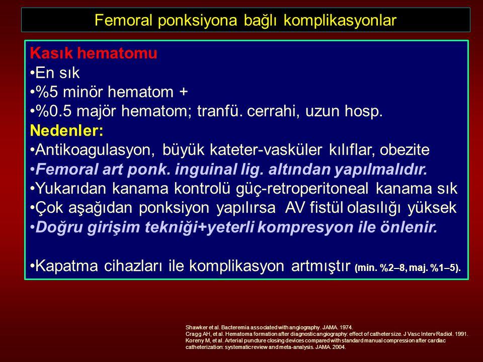 Femoral ponksiyona bağlı komplikasyonlar Kasık hematomu En sık %5 minör hematom + %0.5 majör hematom; tranfü. cerrahi, uzun hosp. Nedenler: Antikoagul