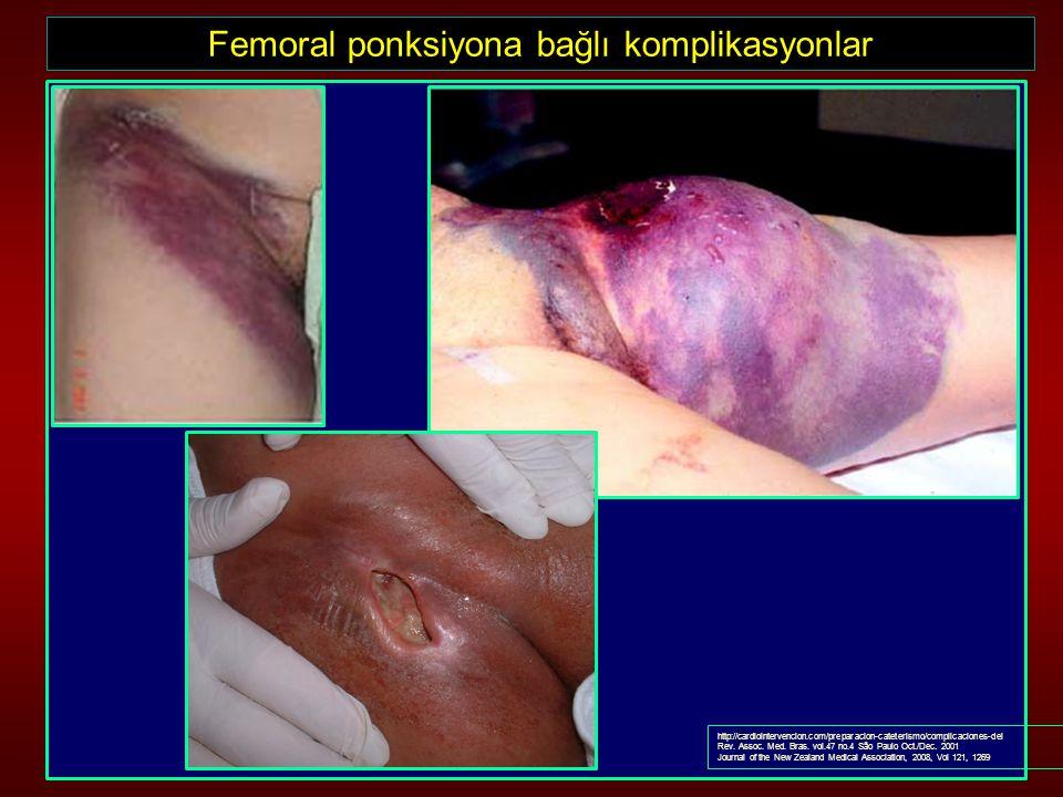 Femoral ponksiyona bağlı komplikasyonlar http://cardiointervencion.com/preparacion-cateterismo/complicaciones-del Rev. Assoc. Med. Bras. vol.47 no.4 S