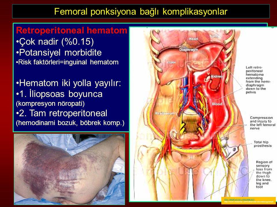 Femoral ponksiyona bağlı komplikasyonlar Retroperitoneal hematom Çok nadir (%0.15) Potansiyel morbidite Risk faktörleri=inguinal hematom Hematom iki y