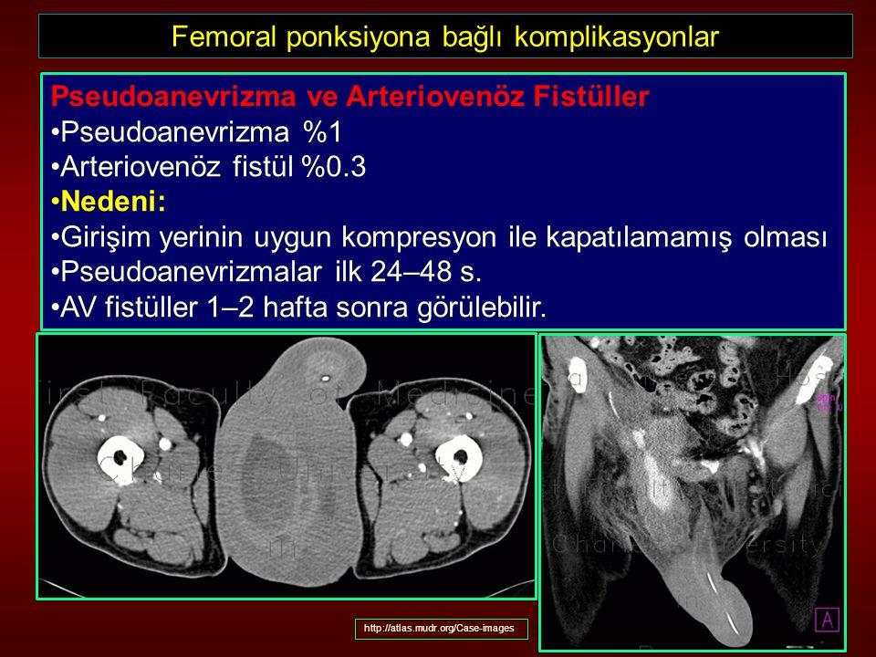Femoral ponksiyona bağlı komplikasyonlar Pseudoanevrizma ve Arteriovenöz Fistüller Pseudoanevrizma %1 Arteriovenöz fistül %0.3 Nedeni: Girişim yerinin