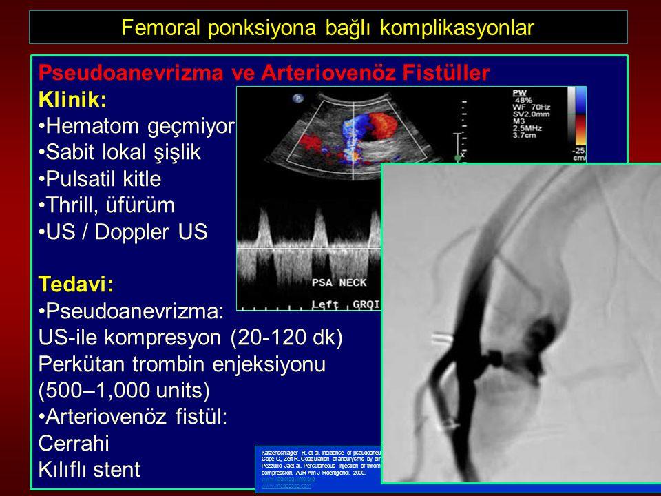 Femoral ponksiyona bağlı komplikasyonlar Pseudoanevrizma ve Arteriovenöz Fistüller Klinik: Hematom geçmiyor Sabit lokal şişlik Pulsatil kitle Thrill,