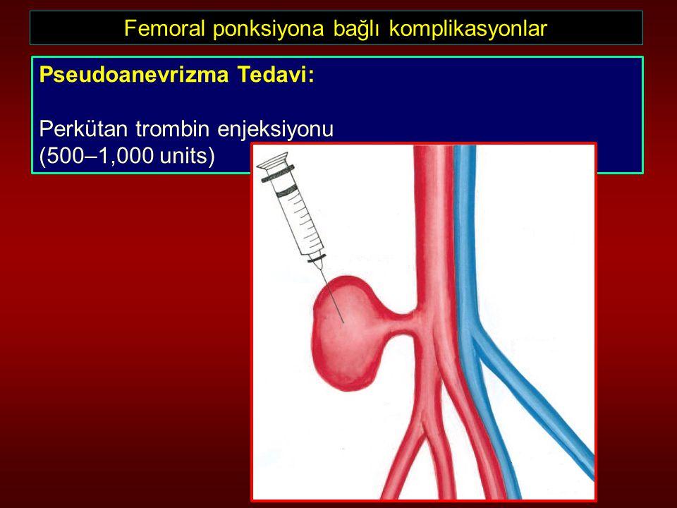 Femoral ponksiyona bağlı komplikasyonlar Pseudoanevrizma Tedavi: Perkütan trombin enjeksiyonu (500–1,000 units)